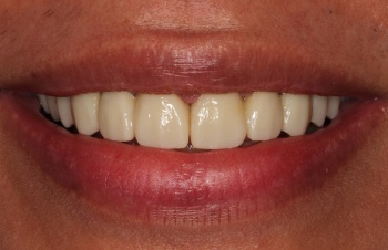 Flawless healthy smile after cosmetic dentistry