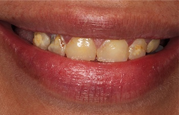 Yellowed decayed teeth before cosmetic dentistry