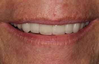 Healthy smile after restorative dentistry