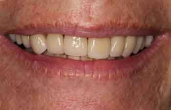 Discolored teeth before restorative dentistry