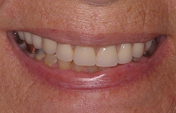 Perfected smile after dental restoration