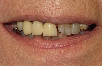 Smile with broken and decayed teeth before dental restoration