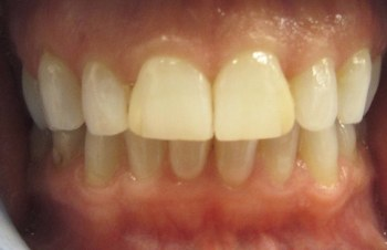 Yellow smile before teeth whitening
