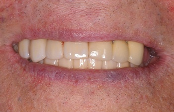 Perfected teeth and alignment after cosmetic dental treatment