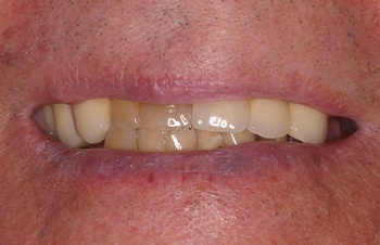 Yellowed and misaligned smile before cosmetic dental treatment