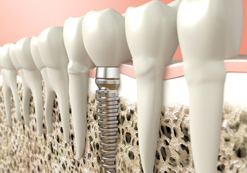 A digital image of dental implant sitting among a row of natural, healthy teeth