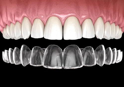 A digital image of a top row of teeth and an Invisalign aligner going on over these teeth